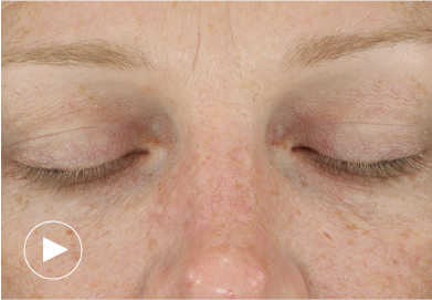 Before and After Diagram after 3 DiamondGlow™ Treatment and 6 weeks